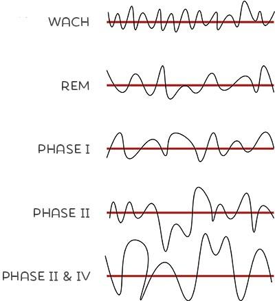 Die 5 Schlafphasen aus der EEG-Perspektive
